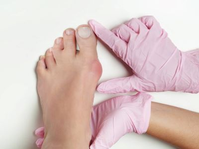 bunions woodinville